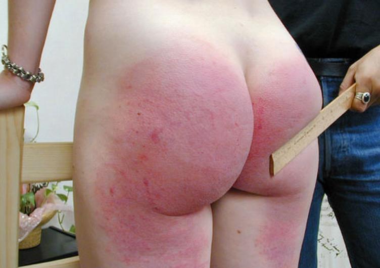 【SM尻エロ画像】真っ赤に腫れる程濡れているwスパンキングで傷モノにされた尻www 14