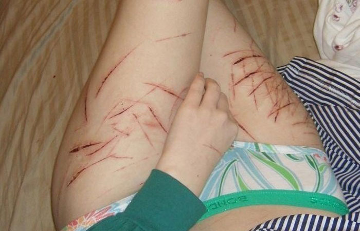 【SMエロ画像】(※閲覧注意)痛いのが癖になったから傷痕背負ったM女たちwww 001