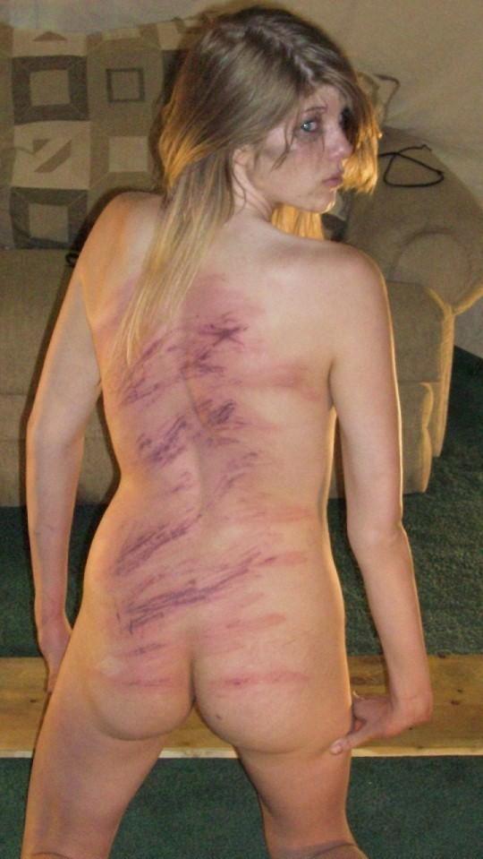 【SMエロ画像】(※閲覧注意)痛いのが癖になったから傷痕背負ったM女たちwww 09