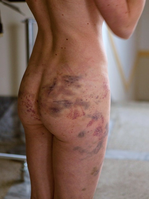 【SMエロ画像】(※閲覧注意)痛いのが癖になったから傷痕背負ったM女たちwww 11